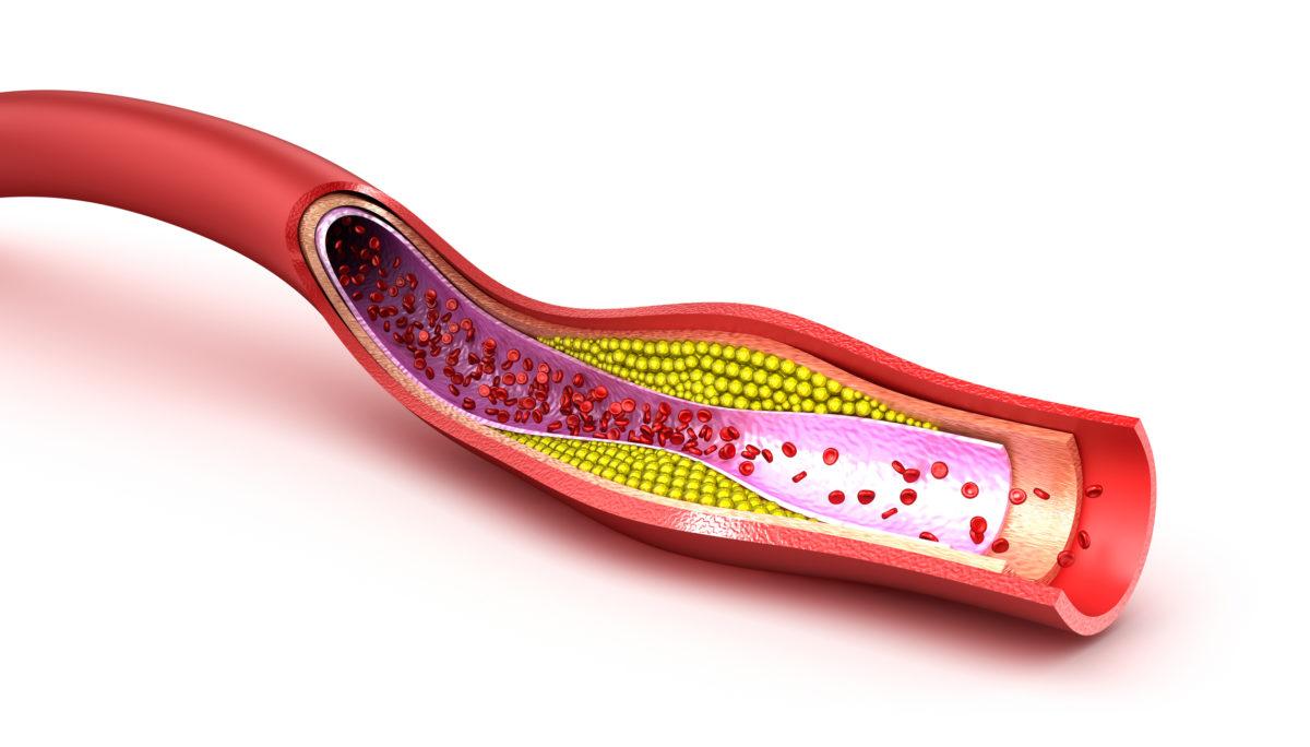 Hva er kolesterol?