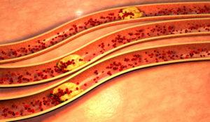 Blodåre som er tett på grunn av kolesterol plakk